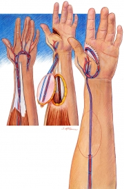 Ipsilateral Radial Forearm Flap